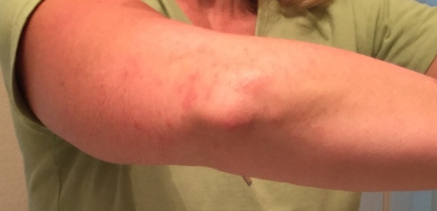 I can't figure out what's causing this rash on my elbow and arm, which is itchy, to say the least.