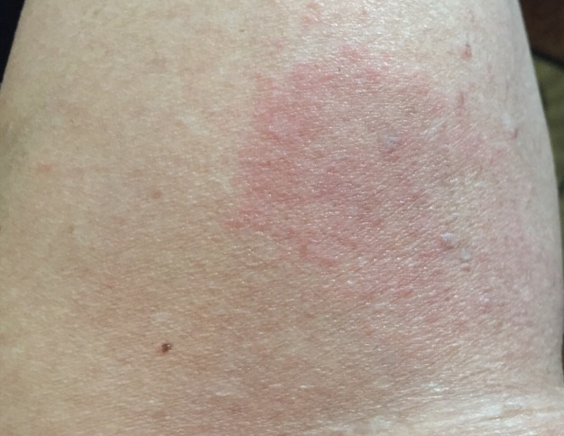 This patch of rash is behind my right knee.